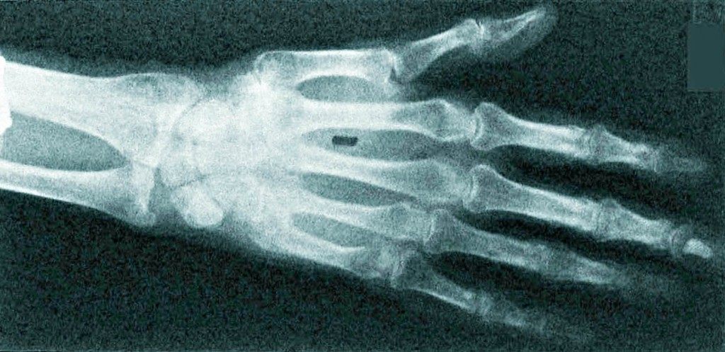 sebastien-laroche-HUMAN-HAND